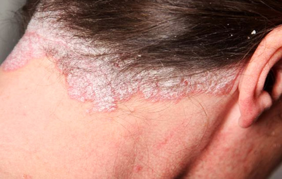 is scalp psoriasis contagious